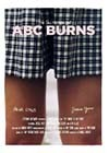 ABC-of-Burns.jpg