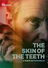 Skin-of-the-teeth-gallery.jpg